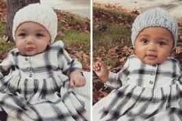 Σπάνιο: Δίδυμα μωρά γεννήθηκαν με διαφορετικό χρώμα
