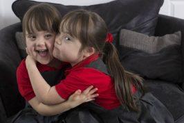 1 στο εκατομμύριο: Τα δίδυμα κοριτσάκια που γεννήθηκαν με σύνδρομο Down