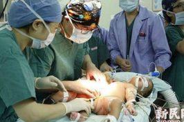 Έγκυος σε σιαμαία είπε «όχι» στην άμβλωση και τώρα τα κρατάει διαχωρισμένα και υγιή στην αγκαλιά της