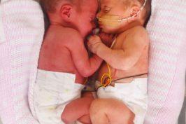 Πρόωρα δίδυμα κοριτσάκια γεννήθηκαν σε διαφορετικές χρονιές